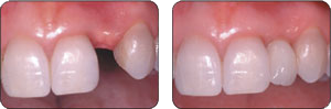 Before and After Somerset Dentist Dr. Sinha adds a dental implant